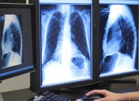 Lung and Sleep Service Image